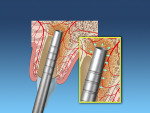 Fig 2. Osteotome used to widen the osteotomy and condense apical bone.