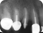 Fig 12. Pretreatment radiograph of nonrestorable maxillary right first premolar.