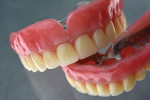 Fig 5. For this denture made with both milled dentures and milled teeth, Avadent materials and Avadent design were customized with composite and added metal frames.