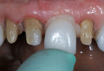 Figure 7  Crowns for teeth Nos. 7 through 10 were individually seated on the preparations and pressure was applied.