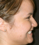 Figure 8  Profile view of full-face profile while smiling demonstrates incisal edge position and inclination relative to profile of face.