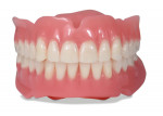 Fig 5. This finished denture was created using Lucitone Digital Print with IPN 3D digital denture teeth.