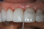 Figure 11  Dental floss was used to remove excess cement from the interproximal spaces of the lithium-disilicate crowns.