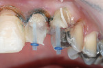 Figure 17  After endodontic treatment, the teeth were restored using esthetic fiber-composite posts. The build-up was completed with a dual-cure composite build-up material