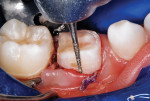 Axial preparation completed after occlusal reduction.