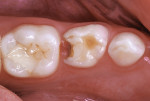 Fractured resin-modified glass-ionomer restoration in mandibular left primary first molar with new caries infection.