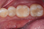 The patient presented with staining, recurrent caries, and ditched margins on teeth Nos. 30 and 31.