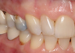 The patient presented for preparation of tooth No. 5 and a detailed, clean dental impression.