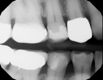 Postoperative radiograph demonstrating a healthy, restored smile line.