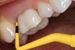 Periodontal probe demonstrating bleeding on probing and marginally deep pocket depth.
