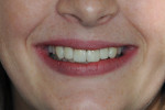 Fig 7. Final smile, post-treatment.