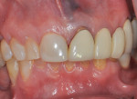 Fig 2. A 62-year-old healthy nonsmoking woman had a history of generalized moderate with localized advanced periodontitis and posterior bite collapse with loss of occlusal vertical dimension. She complained of unsatisfactory excessive gingival display, poor teeth color, and