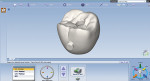 Fig 18. The lab electronically returned a CAD design of the crown (Fig 18), along with a titanium abutment for insertion (Fig 19). The crown was milled and finished in-office. Note the excellent marginal fit of the crown on the abutment (Fig 20).