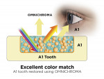 Fig 6. OMNICHROMA provides an excellent color match with either an A1 shaded tooth (Fig 6) or an A4 shaded tooth (Fig 7).