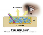 Fig 5. An A1 shaded tooth restored with A1 shade composite offers an excellent color match (Fig 4). An A4 shaded tooth restored with A1 shade composite provides a poor color match (Fig 5).