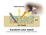 Fig 7. OMNICHROMA provides an excellent color match with either an A1 shaded tooth (Fig 6) or an A4 shaded tooth (Fig 7).