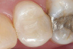 Figure 1  Large mesial-occlusal-distal restoration shown on tooth No. 13 at 6-month recall visit.