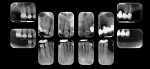 Preoperative full mouth series set of radiographs.