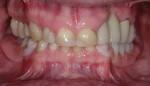 Preoperative retracted view with the removable partial denture.