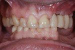 Postoperative view 3 months after esthetic crown lengthening.