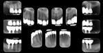 Postoperative full mouth series of x-rays.