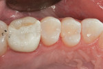 Figure 6  Final polish after occlusal adjustment.