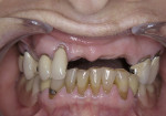 Figure 1  The patient presented with complaints of pain in the maxillary arch and an existing cast partial denture with many broken clasps.