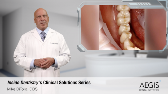 Cementation Confusion- Placing Zirconia Restorations