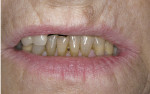 Figure 3  Although the reposed smile photograph showed the patient's shrunken and unsupported upper lip, the lower anterior dentition appeared in good condition.