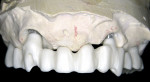 Figure 9  After milling, the zirconia implant bridge was placed on the model to verify fit and prepare for ceramic layering.