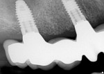 Figure 13  A radiograph was used to ensure the zirconia implant bridge fit the maxillary right implants.