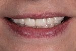 Fig 10. Close-up full smile photograph.