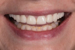 Fig 11. Close-up full smile photograph with teeth apart.