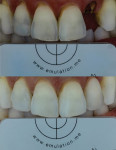 Fig 22. This successful single-tooth restoration is completed with Julian Cardona, CDT.