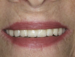Figure 16  The zirconia implant bridge vastly improved the esthetics of the patient's smile.
