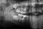 Radiograph taken 4 years and 8 months after treatment.