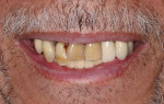 The patient presented with periodontally involved nonrestorable maxillary teeth.