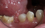 Figure 10  A brief polish with coarse pumice on a prophy cup imparted a smooth finish to the tooth/restoration.