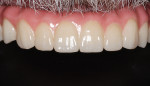 The final zirconia prosthesis was seated with only minimal adjustments needed.