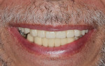 A functionally stable and esthetic result was achieved that satisfied the patient.