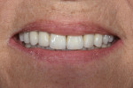 Fig 11. Postoperative 1:2 smile with metal-ceramic restorations.