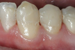 Figure 6  The mandibular canine and first premolar were restored with a nano-hybrid composite resin (N'Durance).