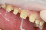 Figure 4  OptiBond Solo Plus was applied, air-thinned, and cured for 5 seconds on each tooth.