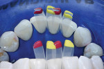 Lingual view with matrices placed to show the change in tooth contour that will be obtained to achieve adequate space closure.