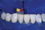 After the injection molding and shaping of tooth No. 24 was completed, tooth No. 25 was matrixed for injection molding.