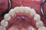 Immediate postoperative retracted occlusal view with the dam removed to show the soft-tissue adaptation.