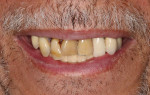 Fig 1. The patient presents with periodontally involved nonrestorable maxillary teeth.