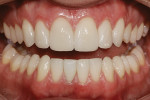 Figure 10  Full-mouth bleaching, minimal preparation feldspathic veneers on teeth Nos. 6 to 11, and a leucite-reinforced retoration on tooth No. 25 fulfilled the patient's objectives