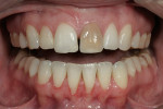 Figure 13  This patient presented with an extremely discolored tooth No. 9 and a midline diastema.