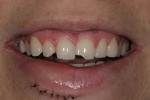 Figure 1  Preoperative smile 1 day after trauma showing chipped maxillary teeth Nos. 7, 8, and 9.